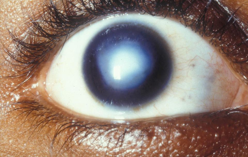 Помутнение роговицы глаза человека (бельмо)