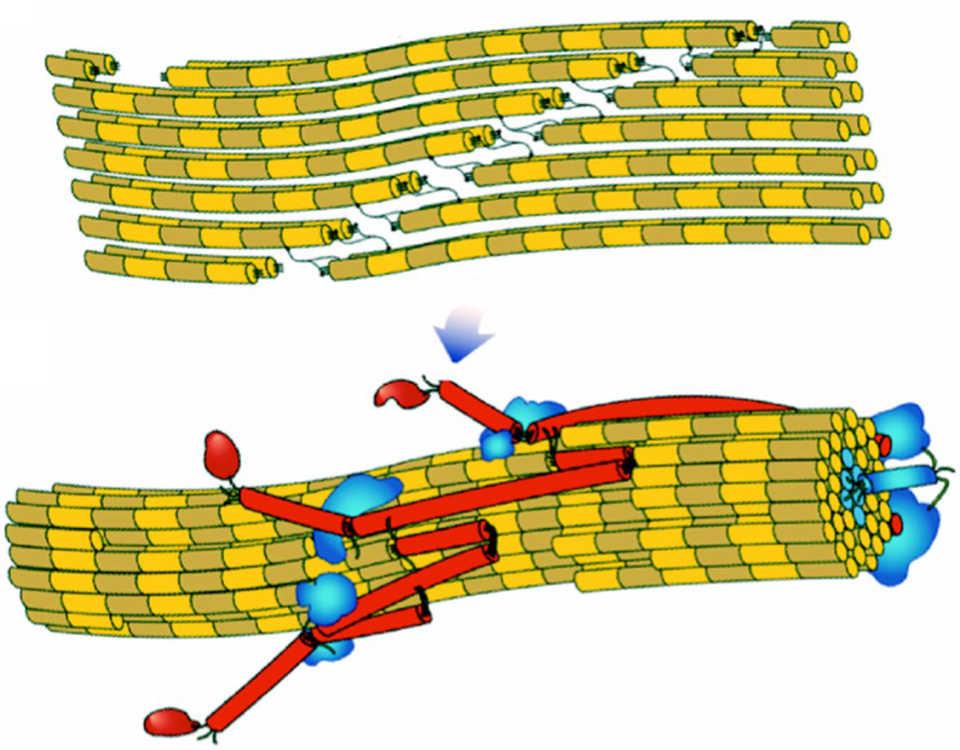 Принцип действия метода кросслинкинга роговицы при кератоконусе