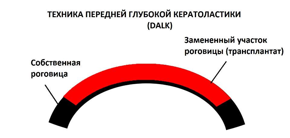 Передняя послойная кератопластика при кератоконусе (DALK) в Москве