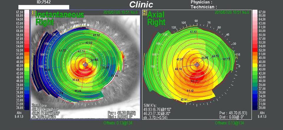 Компьютерная кератотопография роговицы глаза