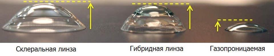 Лечение кератоконуса жесткими контактными линзами