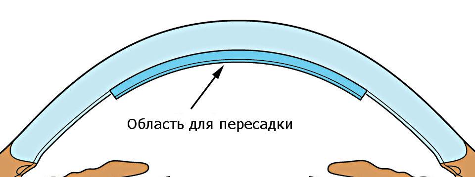 Задняя послойная эндотелиальная кератопластика (пересадка роговицы) в Москве